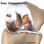 Signs of osteoarthritis